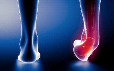 Sprains and strains cause swelling and edema