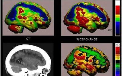 Brain Repair years After Stroke