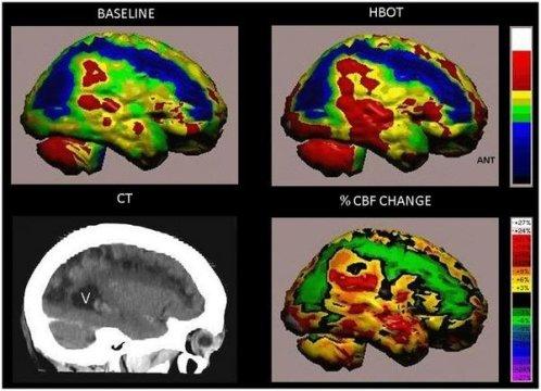 brain-repair-after-years-of-stroke