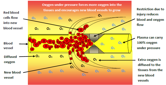 oxygen-helps-hard-to-heal-wounds
